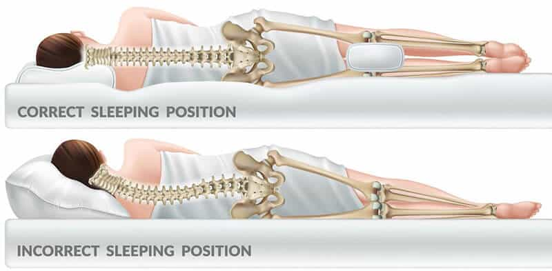 Which Sleep Position Is Ideal for Reducing Hip Pain